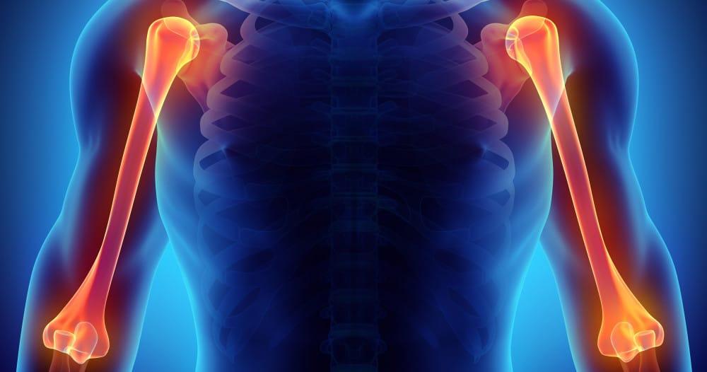 fracture de l'humérus